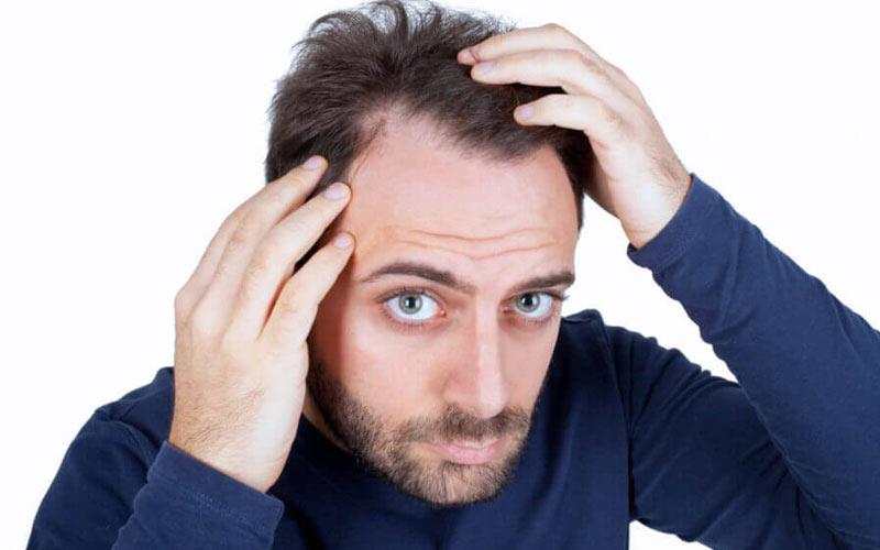 تدابیر ریزش موی سر